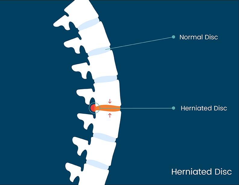 Causes of Spinal Compression