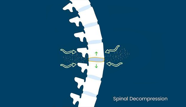 Spinal Decompression in Nashville